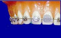 dental wax on orthodontic braces