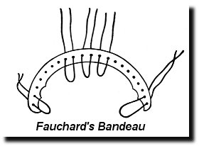 Fauchard's Bandeau - early orthodontic device