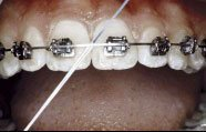 Braces FAQ Frequently Asked Questions: How to clean your ...