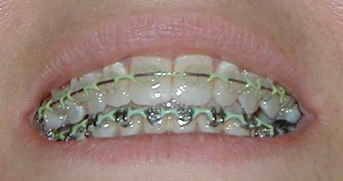 how to clean stained elastics on braces