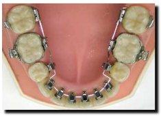 Lingual braces behind the teeth