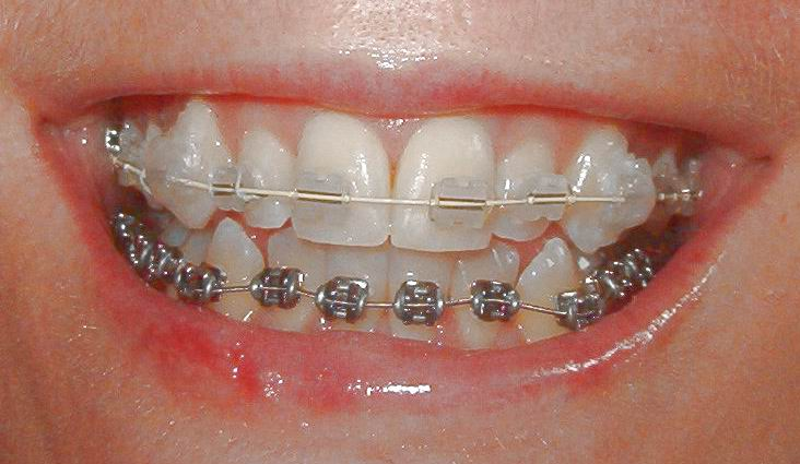 White Braces Color