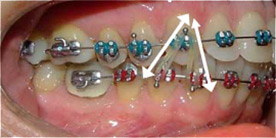 Archwired A Website For Adults With Dental Braces And Retainers On