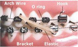 Parts of orthodontic braces