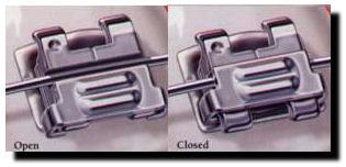 Self-ligating brackets