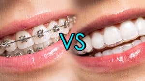 Braces-vs-Invisalign