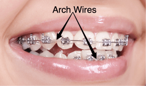 Braces_Close_Up_ArchWires