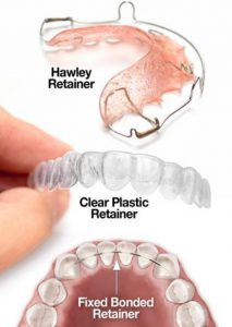 Three Types of Retainers