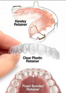 Three Types of Orthodontic Retainers