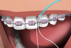 Flossing braces with a plastic flossing needle