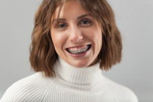 Woman-In-Braces-Smiling