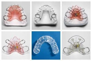 Orthodontic_Appliances