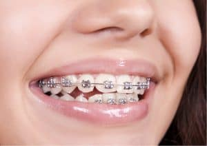 Orthodontic_Braces_Photo