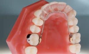 Orthodontic Bite Plate