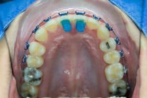 Bite Turbos Behind Front Top Teeth