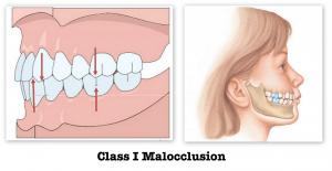 Class_I_Malocclusion