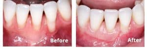 Gum_Recession_Before_After