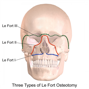 Le Fort Osteotomy