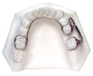 Mesial Jet Appliance