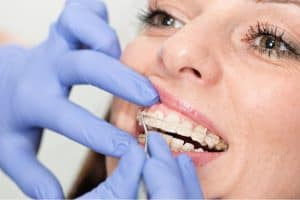 Orthodontic_Adjustment