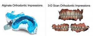 Orthodontic_Impressions