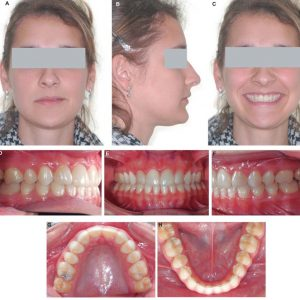 Orthodontic_Photographs-1
