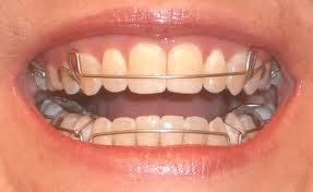 Retainer-On-Teeth