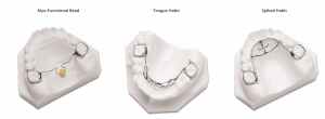 Tongue_Habit_Devices