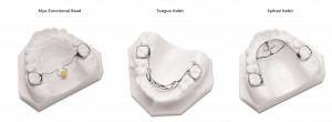 Tongue Habit Devices
