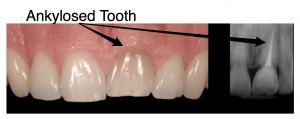 Ankylosed_Tooth