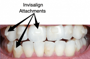 Invisalign Attachments On Teeth