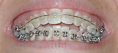 6_month_teeth.jpg