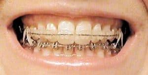 My_Teeth_4032.jpg