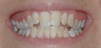 My_Teeth_Before_Zoomed2