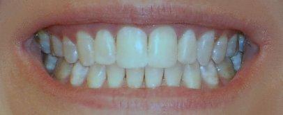 My_Teeth_Final_May05.jpg