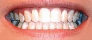 My_White_Teeth
