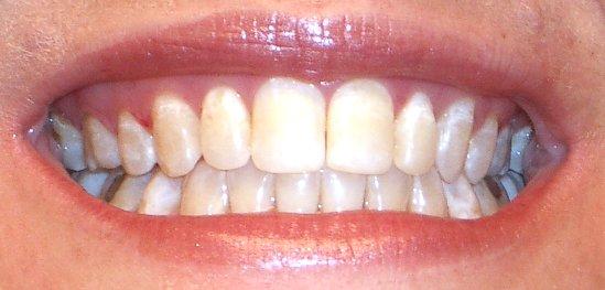 New_Teeth_CU