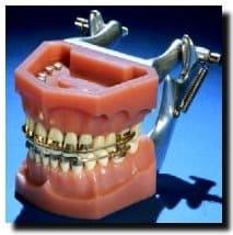 old_braces